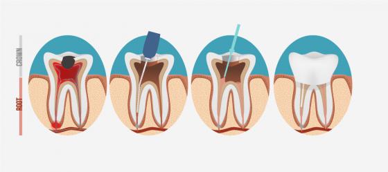 devitalizzare un dente
